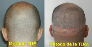 FUE vs FUE